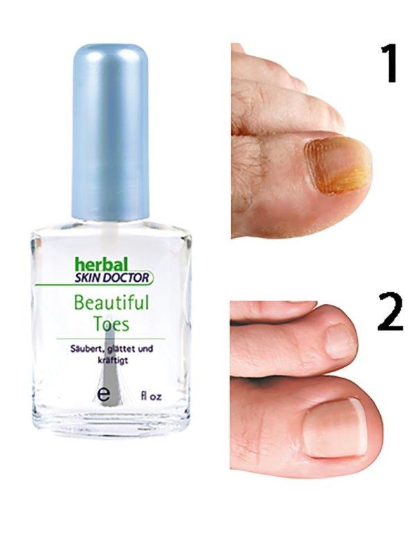 Esmalte reparador para uñas de los pies transparente